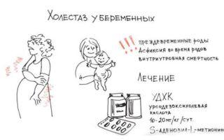 Холестаз при беременности: причины и симптомы, диагностика и лечение