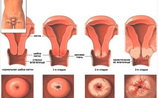 Выделения при раке шейки матки: один из признаков болезни