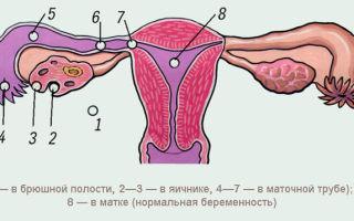 Может ли замершая трубная беременность обойтись без операции?