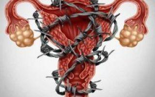 Эндометриоз 2 степени: причины, особенности протекания и симптомы