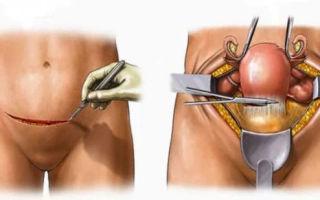 Фиброма матки: особенности, клиническая картина и лечение