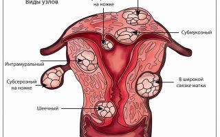 Культя шейки матки после удаления матки: описание