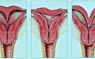 Плотная матка: что это значит для женщины, как распознать?