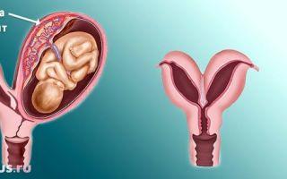 Удвоение матки: что это и возможна ли беременность при таком нарушении?