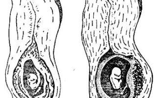 Шеечная внематочная беременность — чем опасна патология?