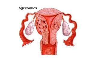 Эхопризнаки аденомиоза: причины, симптомы и диагностическое значение