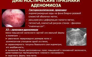 Эндометриоз и беременность: причины и совместное протекание