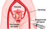Субсерозная миома матки: причины, особенности и симптоматика
