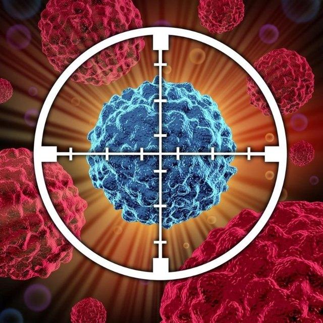 Рак шейки матки 1 стадия: симптомы и методы борьбы