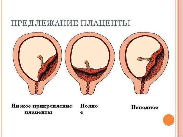 Плацента расположена по задней стенке матки: это хорошо?