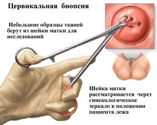 Пункция матки: показания к проведению, стоимость