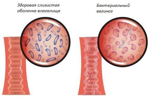 Водянистые выделения у женщин как вода: норма или патология?
