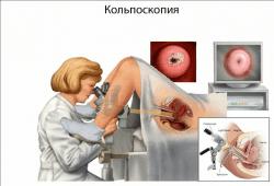 Атрофия шейки матки: приводит ли к бесплодию?