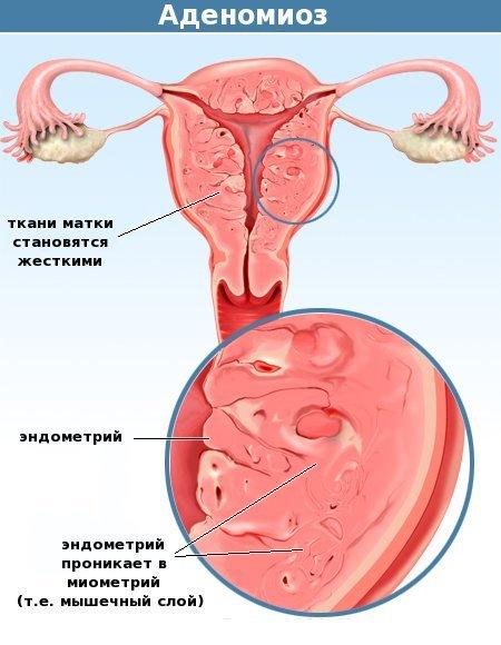Аденомиоз и эндометриоз: в чем разница симптомов и протекания?