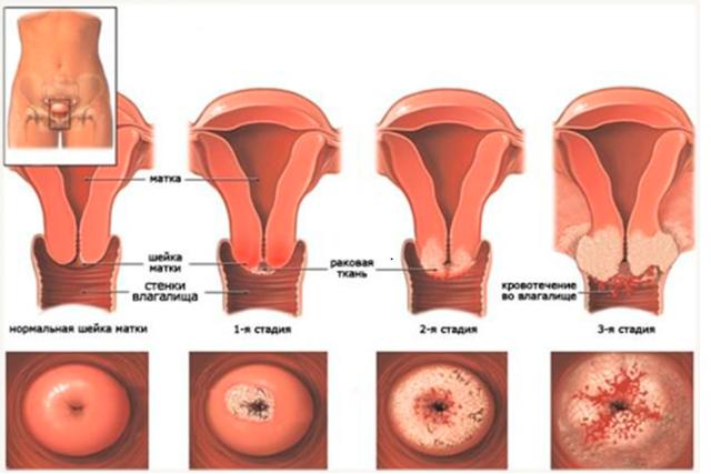 Рак шейки матки: причины, стадии, признаки, лечение, прогноз