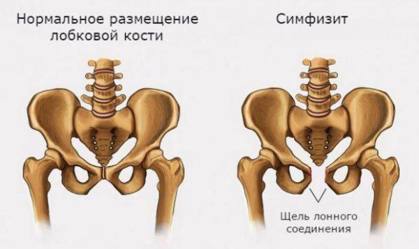 Болит лобковая кость при беременности: в чем причина и как облегчить состояние?