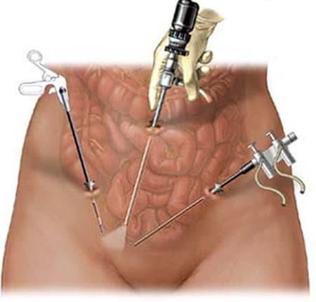 Лапароскопия миомы матки: показания, противопоказания, особенности