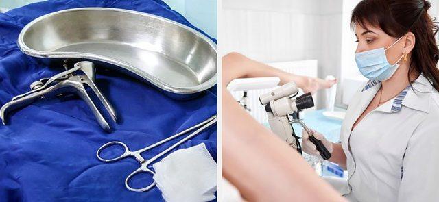 Электроэксцизия шейки матки: показания, ход операции и последствия