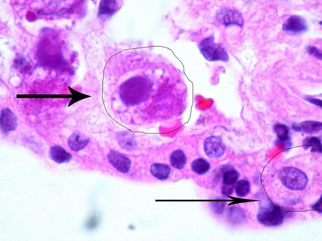 Цитомегаловирус при беременности: пути заражения, симптомы, диагностика и лечение, опасность и профилактика