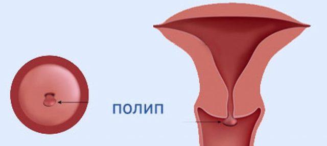 Удаление полипа шейки матки: виды операций