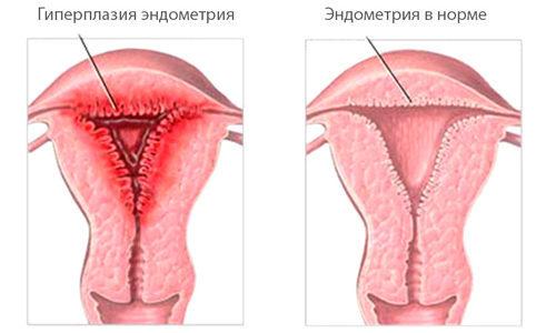 Гомеопатические препараты для лечения гиперплазии эндометрия