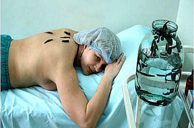 Пиявки при бесплодии: эффективность, противопоказания