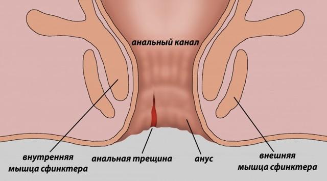 Кровь из заднего прохода при беременности: причины, лечение