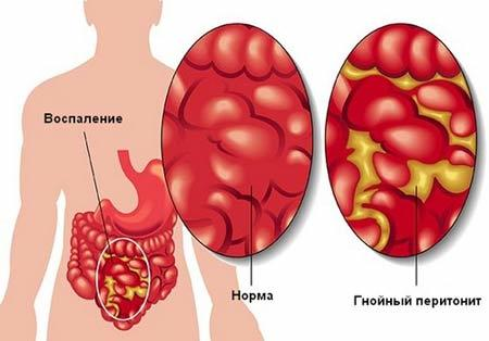 Заболевания матки у женщин: причины и проявления, методы терапии