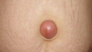Пупочная грыжа при беременности: причины, лечение