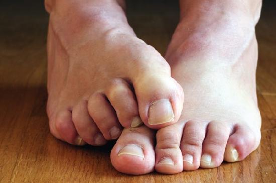 Лечение грибка ногтей при беременности: виды грибка, причины, симптомы, опасность