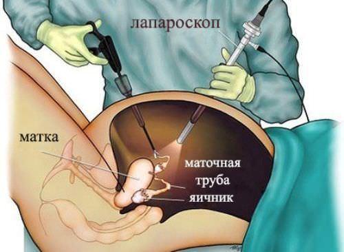 Киста желтого тела при беременности на ранних сроках: причины