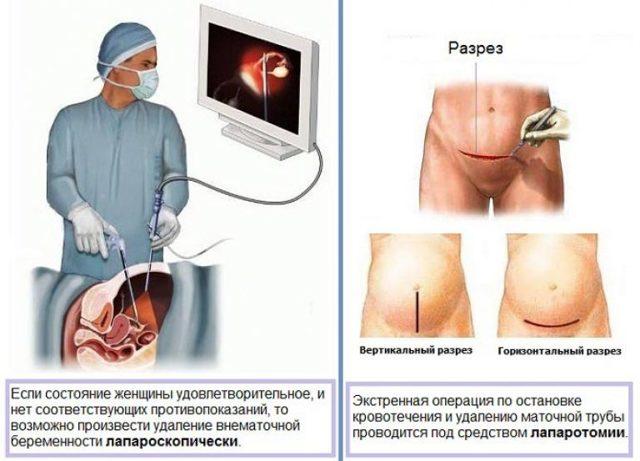 Лапароскопическая овариоэктомия при внематочной беременности: показания к операции