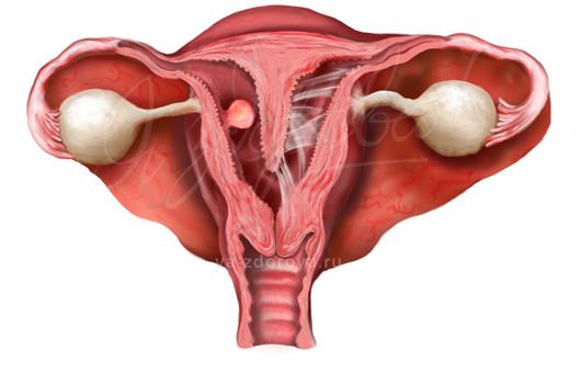 Полость матки расширена: причины и методы устранения