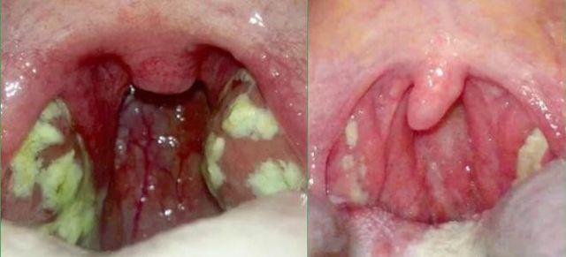 Тонзиллит при беременности: что это такое, причины и симптомы, формы, лечение и профилактика, опасность
