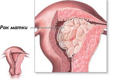 Опухоль матки: симптомы и как узнать о ее наличии в организме?