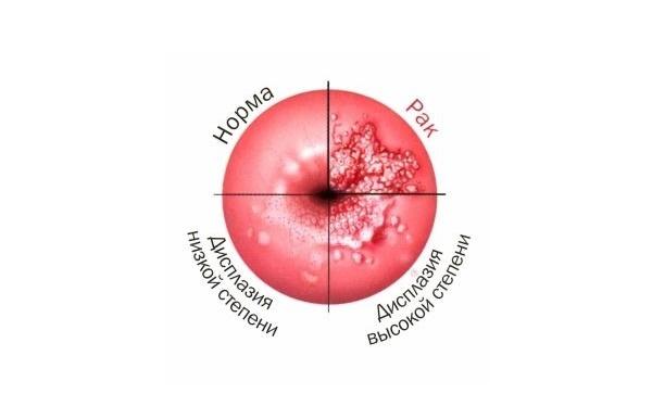 Дискариоз шейки матки: причины возникновения, лечение, осложнения