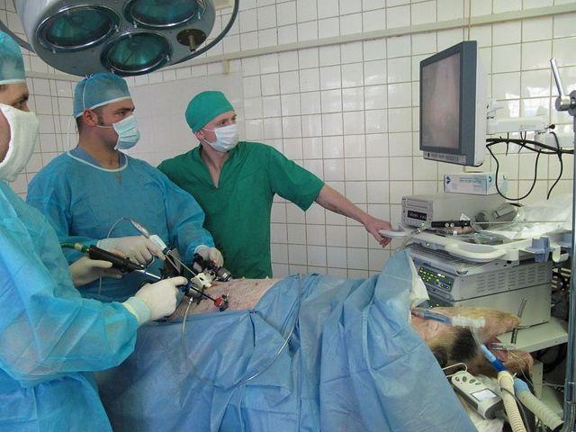 Гистеросальпингоовариэктомия: операция по удалению матки с придатками