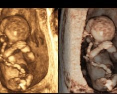 На каком сроке УЗИ показывает беременность: возможны ли ошибки