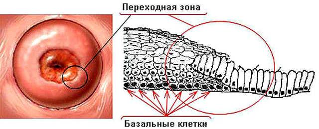 Беременность после удаления шейки матки: вероятность наступления