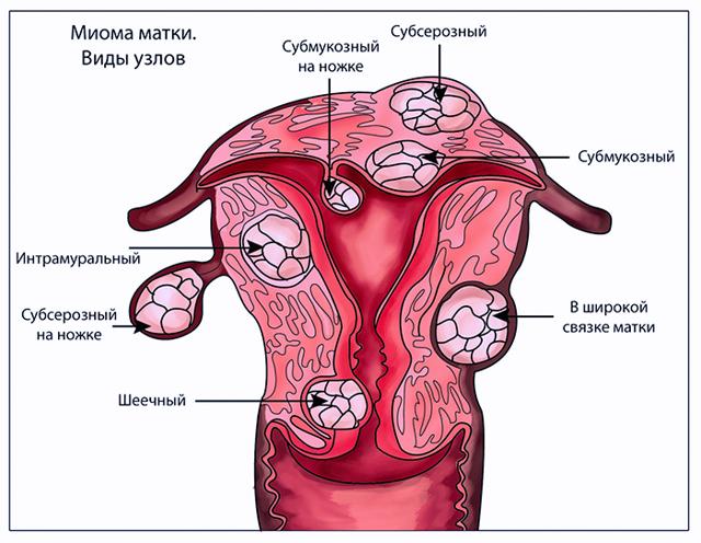 Миома матки: лечение народными средствами и показания к нему