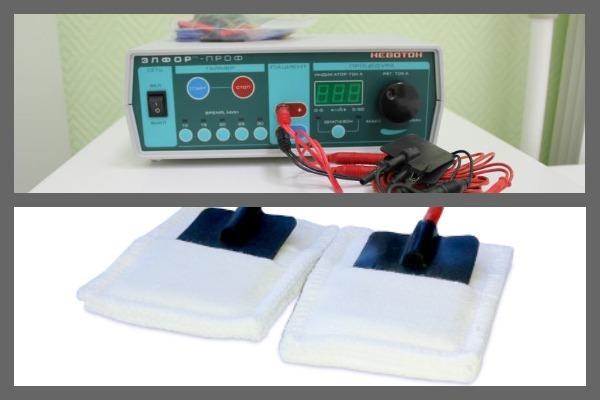 Электрофорез при беременности: показания и алгоритм проведения