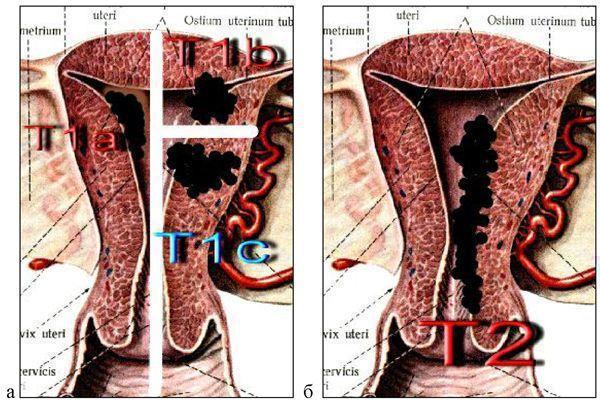 Рак эндометрия: причины и признаки, лечение разными методами