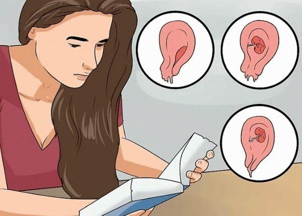 Железистая гиперплазия эндометрия: особенности, типы, лечение заболевания