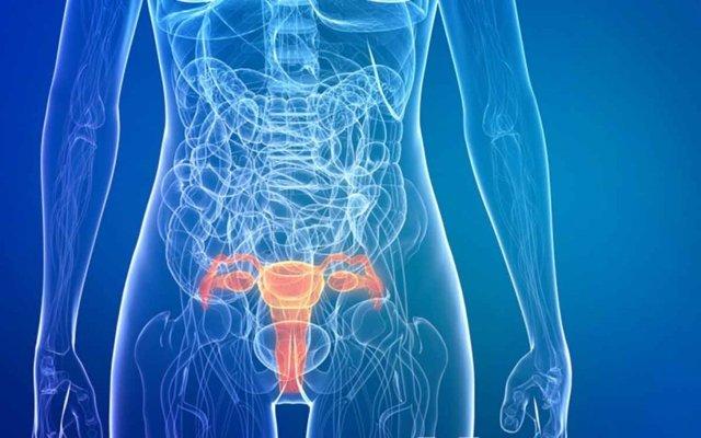 Высокодифференцированная аденокарцинома матки: что это, причины, симптомы, лечение, прогноз