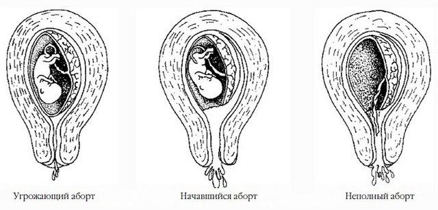 Симптомы выкидыша на ранних сроках беременности: почему случается, что делать