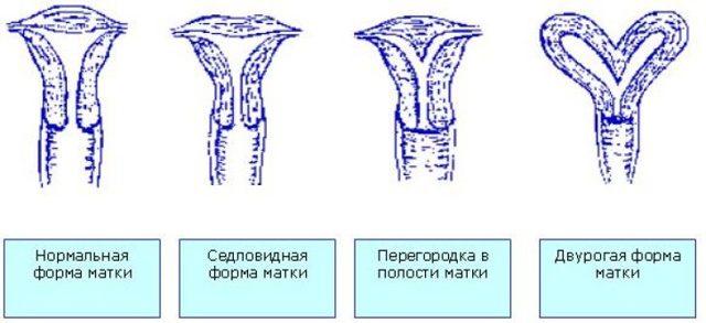 Рудиментарный рог матки: особенности строения