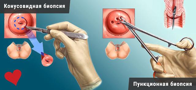 Радиоволновая биопсия шейки матки: показания к проведению