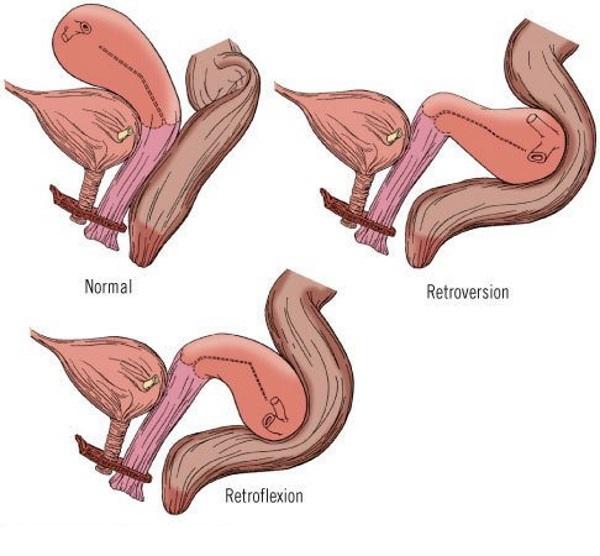 Летерофлексия матки, виды летерофлексии, причины, диагностика и способы лечения