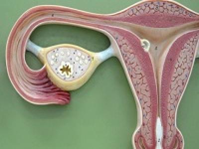 cложная гиперплазия эндометрия: особенности и подходы к лечению заболевания