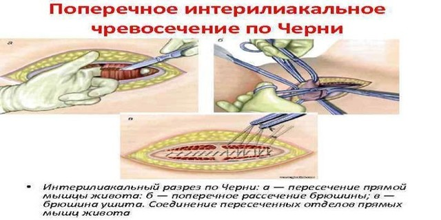 Лапаротомия матки: показания, техника, восстановительный период
